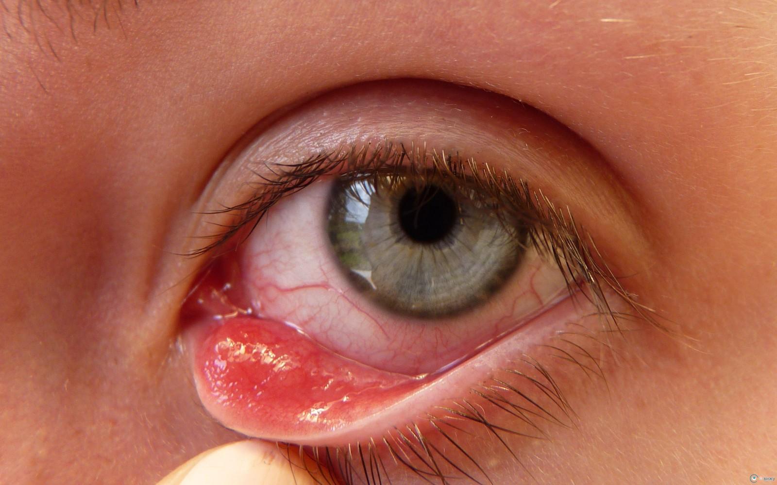 Helmintikus terápia lupus