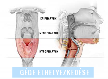 gége papillomatosis bronchitis)