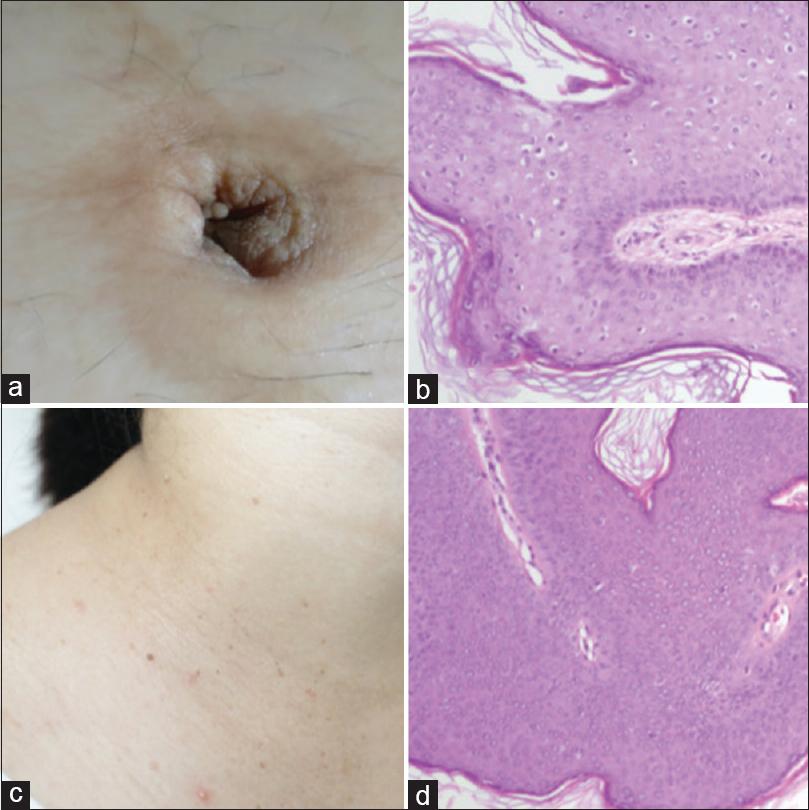 condyloma acuminatum vulva szövettan
