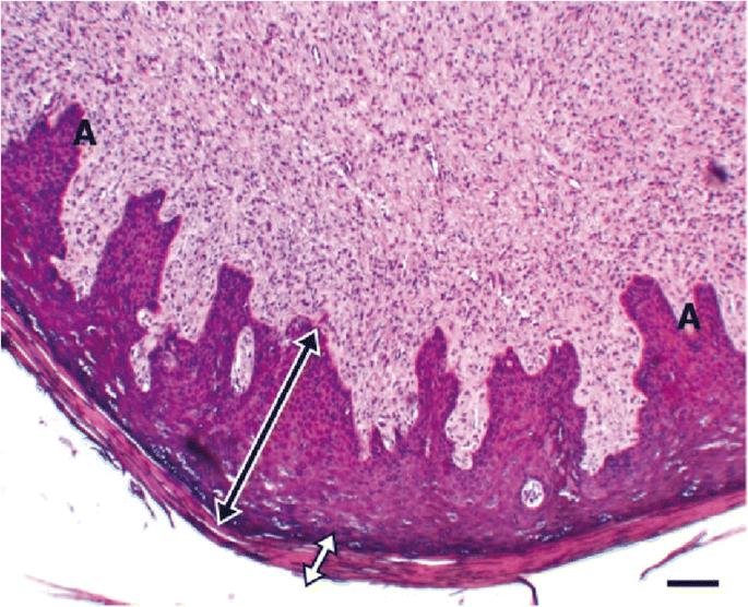 gége papillomatosis patogenezise)