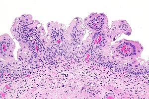 papilloma urothelialis hisztopathology