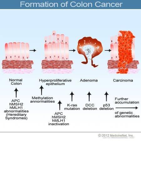 gyógymódok bőr paraziták ellen szolkovagin cauterizált szemölcsök