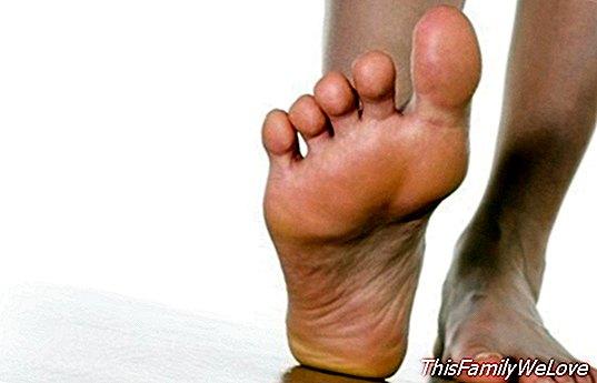 a láb papilloma