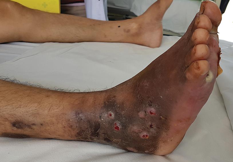humán papillomavírus mycosis)