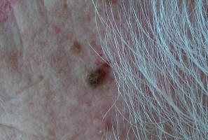 Condyloma nőkben: típusok, okok, tünetek és kezelés - Női Egészség -