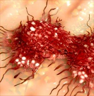 hpv rákos halálozások
