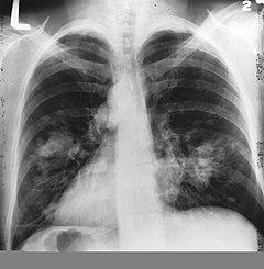 szarkóma rákos tüdő
