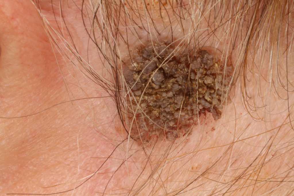 hpv tüdőrák tünetei hpv papilloma vírus sta je