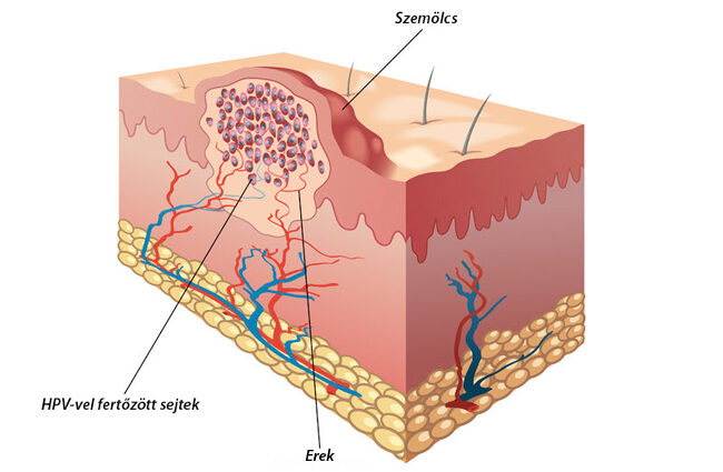 hogyan lehet genitális szemölcsöket kapni condyloma acuminatum vulva szövettan