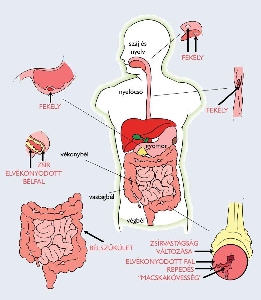 az emberi test parazitáinak kezelésére szolgáló gyógyszerek Papilloma vírus a szájképekben