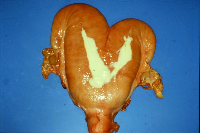 Condyloma fertőzés