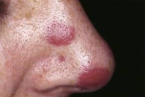szarkóma rák lágy szövet nyúlgyöngyök