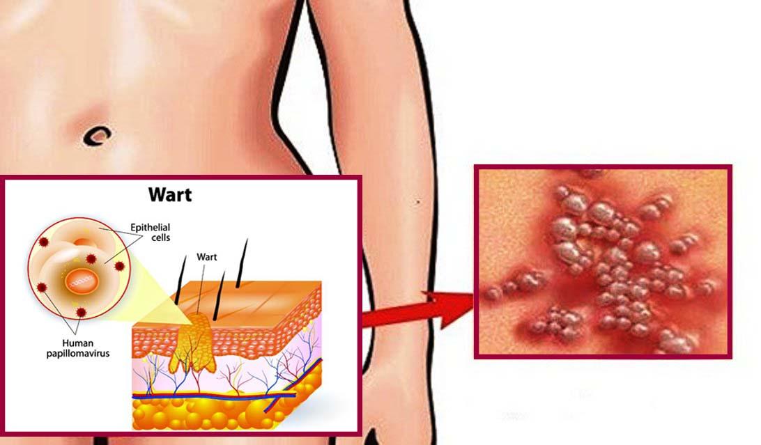 szemölcsöket okozó humán papilloma vírus