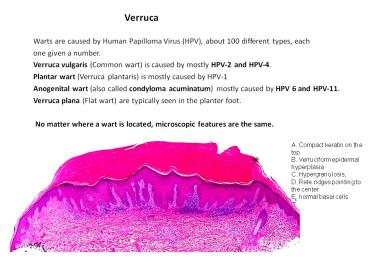 laphámsejtes papilloma és verruca vulgaris