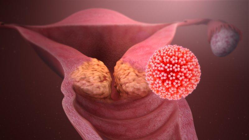 papilloma immunitás)