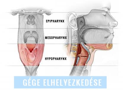 gége papillomatosis természetes kezelés