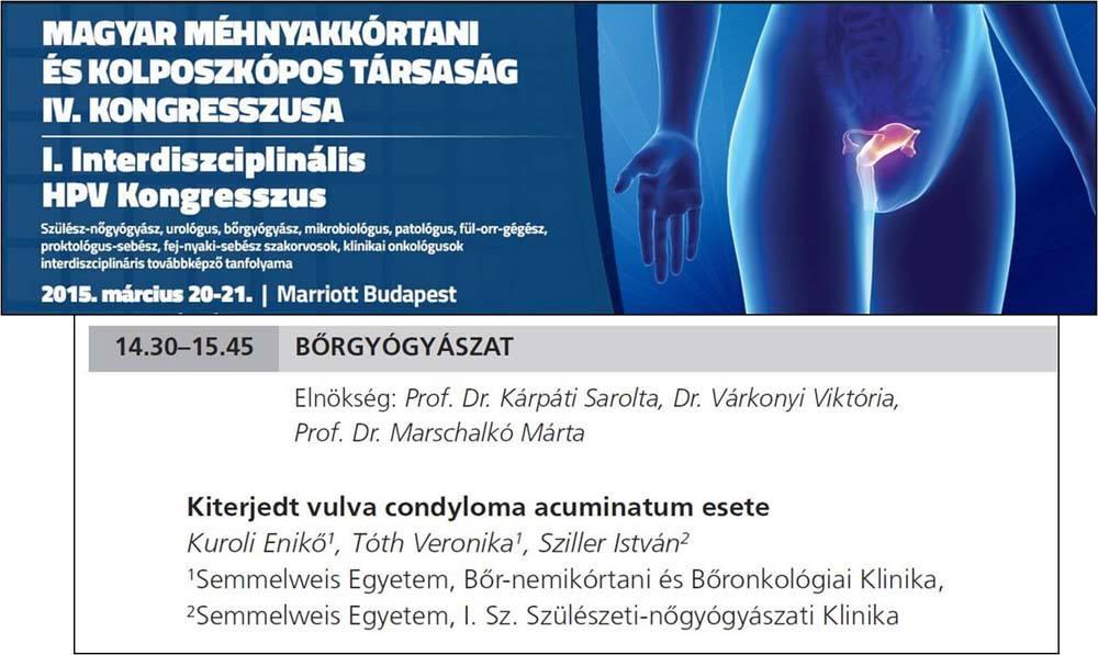condyloma és onkológia)