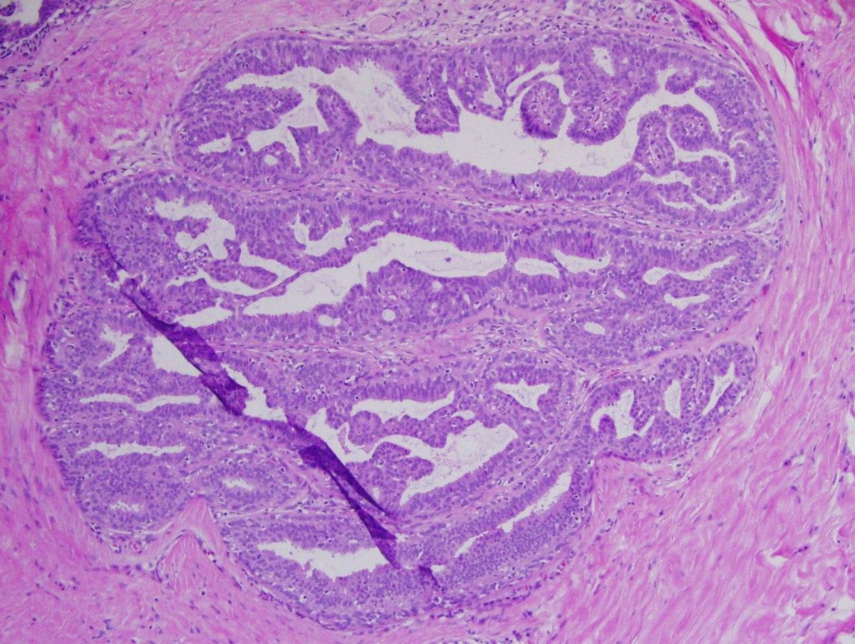 papilloma vs neoplazma féreg a kfc
