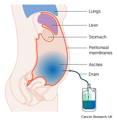 peritoneális rák endometriózis)
