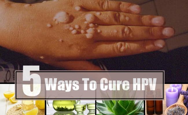 hpv papilloma vírus sta je genetikai rákos hajlam