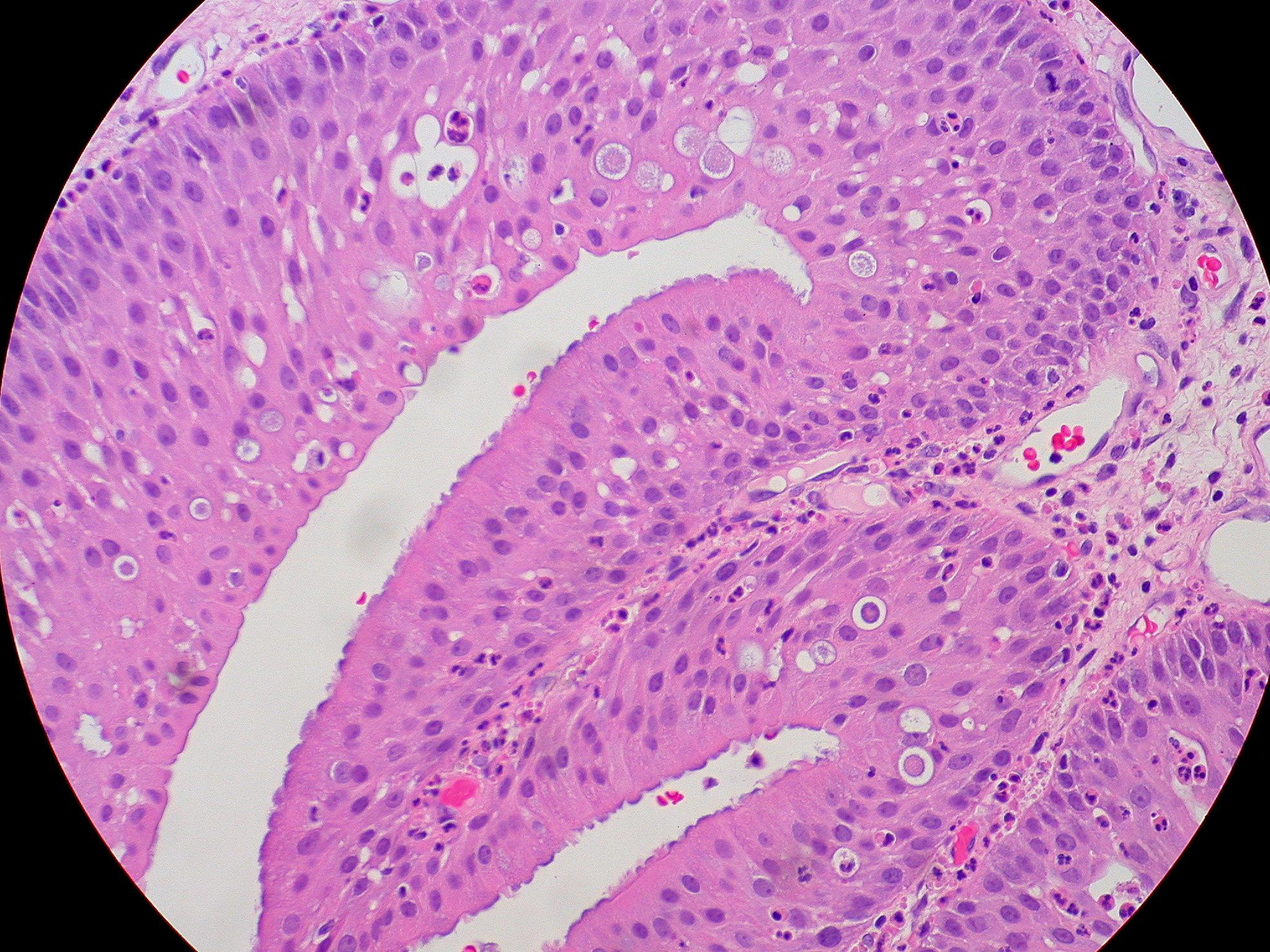 oncocitikus papilloma