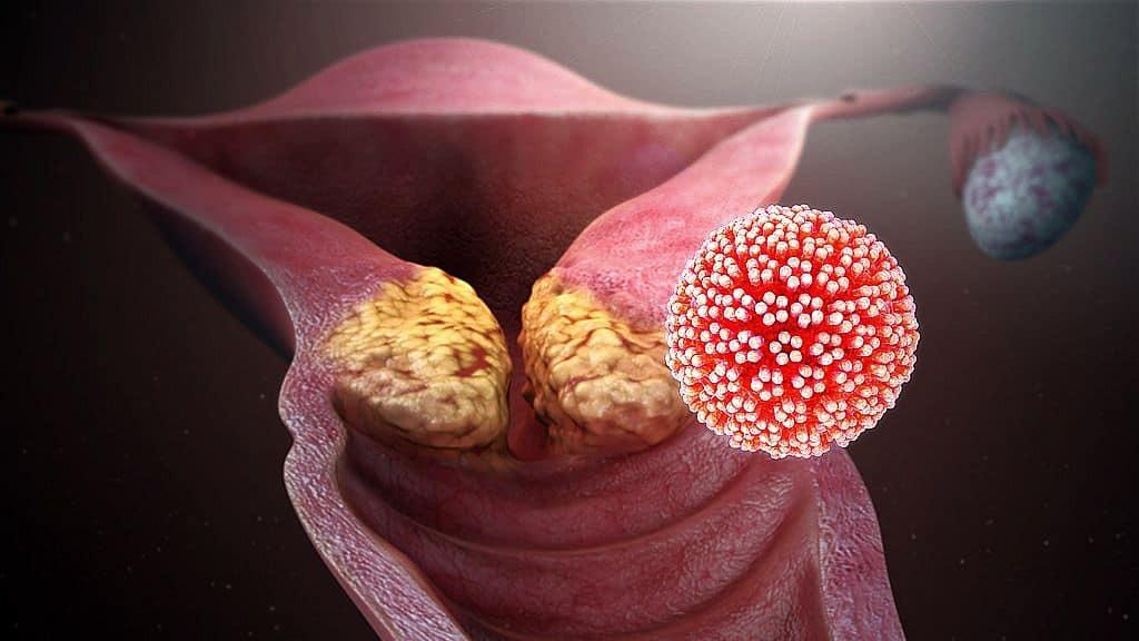 emberi papillomavírus fertőzés a lábakon