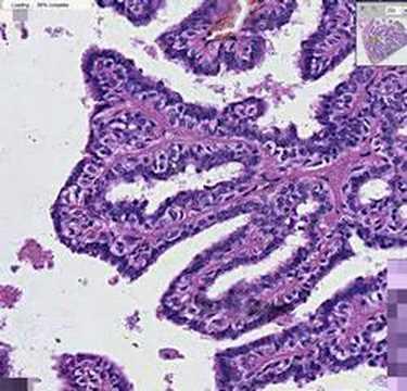 Teljes körű emlődiagnosztika és mintavétel | CMC Déli Klinika