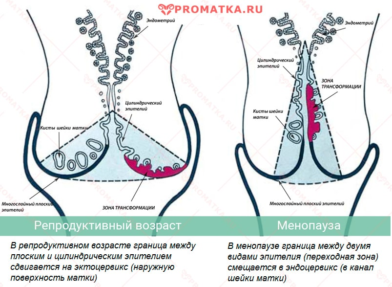 papillomavírus nőrák)