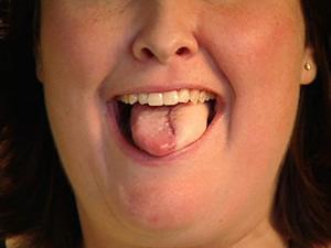 papillomavírus nyelvrák)