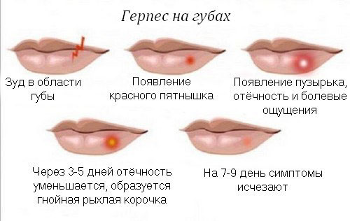 Allergén termékek listája