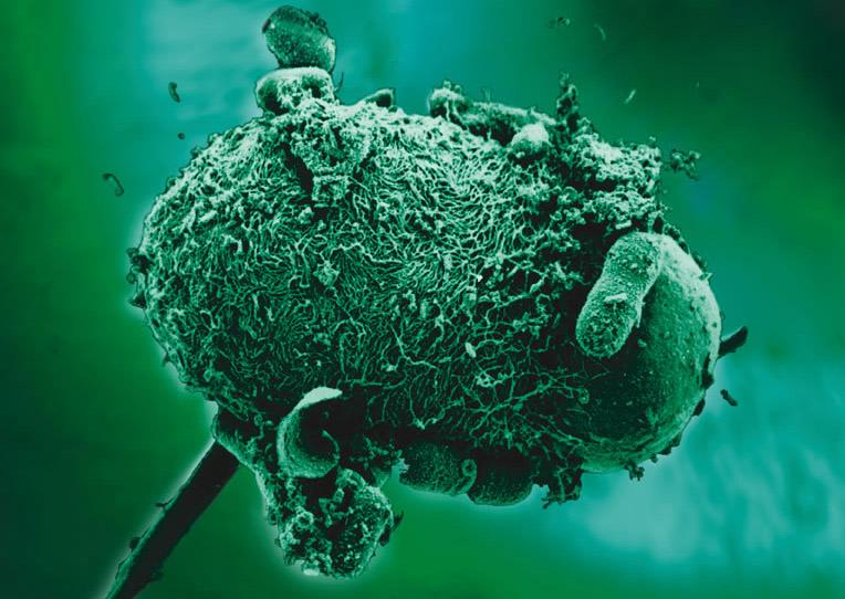 Centrum Lab - Vizsgálat részletei - Giardia/Cryptosporidium antigén kimutatása