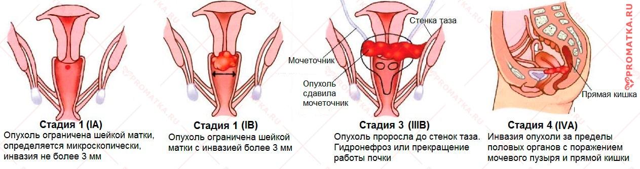 papillomavírus nőrák