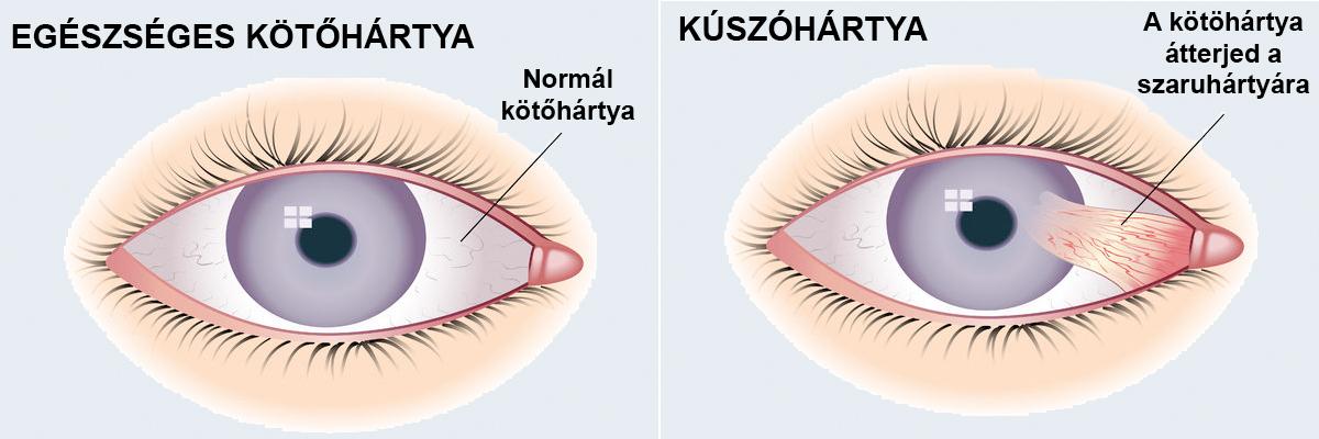 A szemhéjon található papillómák okai és tünetei - Lipoma