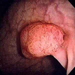 papilloma fibroepithelialis acrochordon)