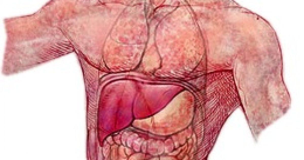 Személyre szabott, célzott daganatterápiák - Mutáció.hu