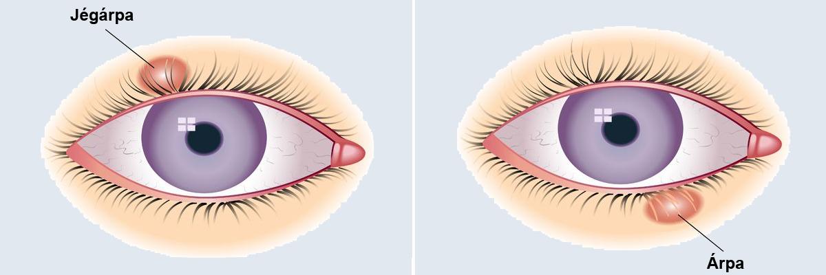 a belső szemhéj papilloma vidám papillomavírus vakcina