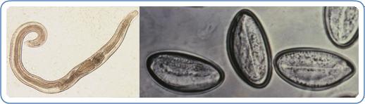 Pinworms hogyan befolyásolják a testet - Pinworm férgek és hogyan kell kezelni őket