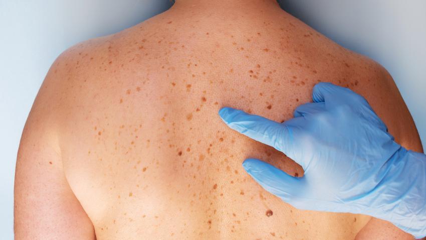 bőrrák diagnózis)