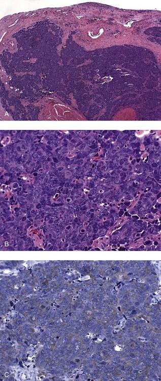 urothelialis papilloma ck20)