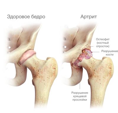 áttétes csípőfájdalom rák