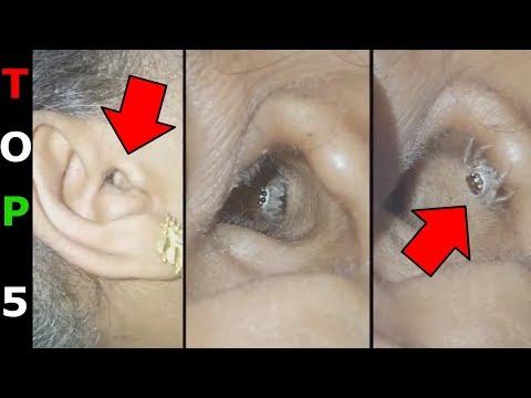 parazita képek az emberi testről)
