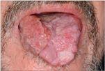 száj papilloma vírus