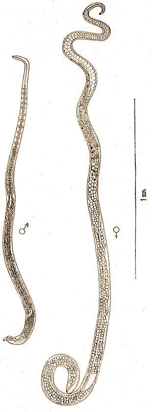 Pinworms egy kisgyermekben
