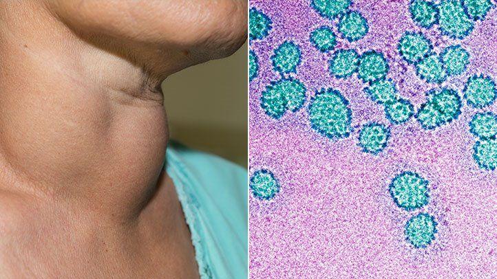 hpv vírus 35 évesen