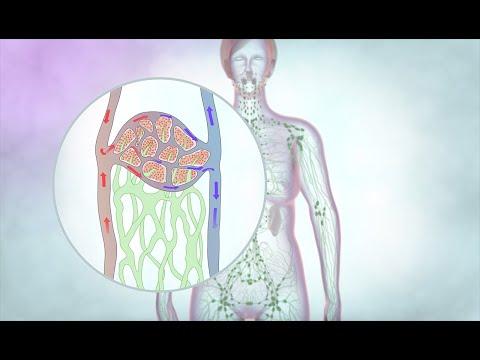 A lymphedema parazitákat okoz. Bélféreg kiírtása