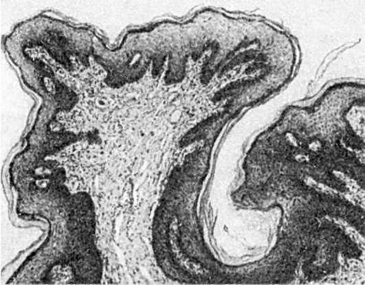intraductalis papilloma pikkelyes metaplázia)
