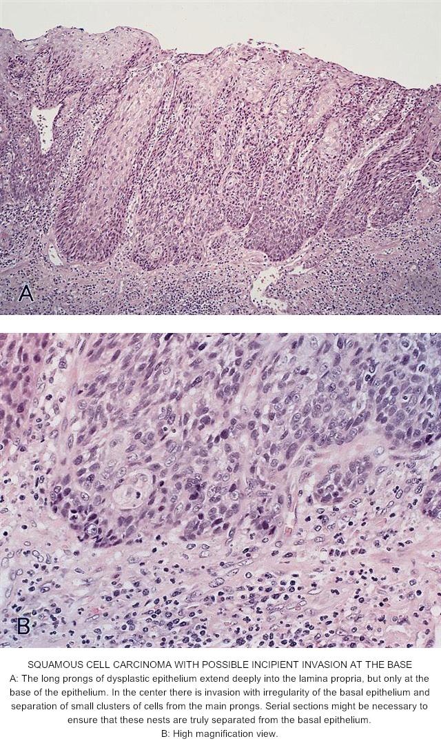 A giardia PCR-diagnosztizálása - Giardia ag eia