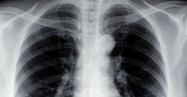 Szintetikus CBD rákos betegek kezelésében | Magyar Orvosi Kannabisz Egyesület