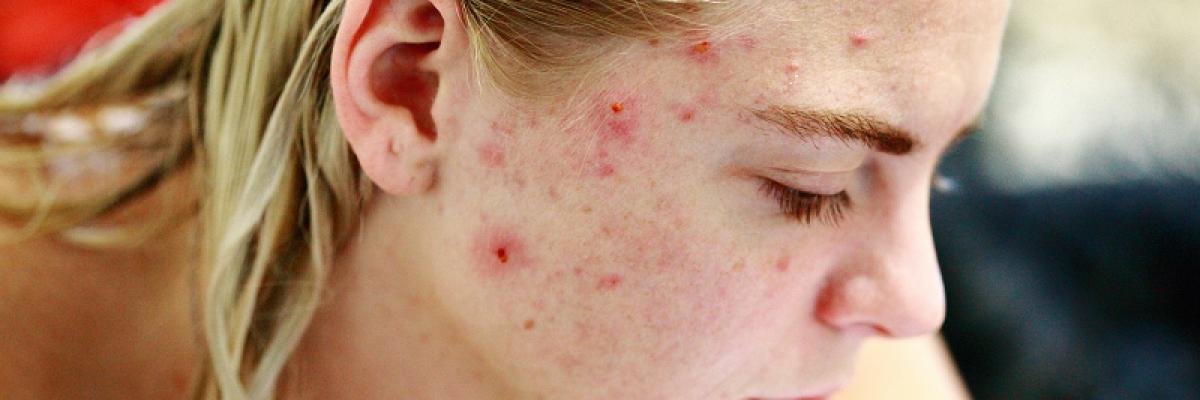 A pattanásos bőr kezelése A-tól Z-ig