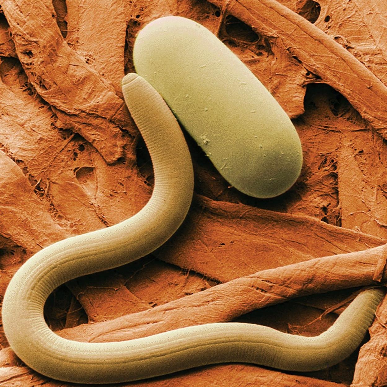 A nyirok és a paraziták tisztítása